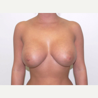 25-34 year old woman treated with Breast Augmentation after 3377948