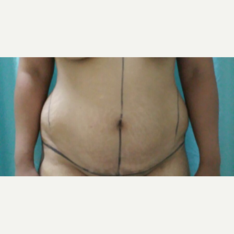 25-34 year old woman treated with Tummy Tuck before 3249098