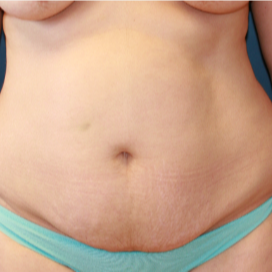 32 yr old mother of two four months after abdominoplasty (tummy tuck) before 3202974