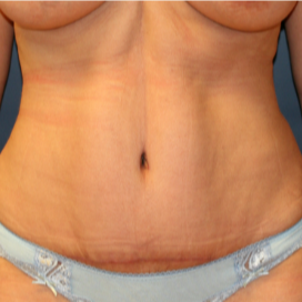 32 yr old mother of two four months after abdominoplasty (tummy tuck) after 3202974