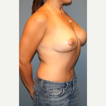25-34 year old woman treated with Breast Lift after 3475367