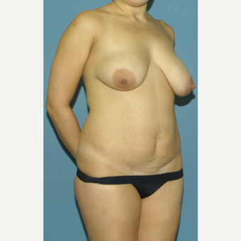 25-34 year old woman treated with Breast Lift before 3475367