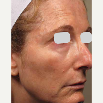 Woman treated with ResurFX after 1799098