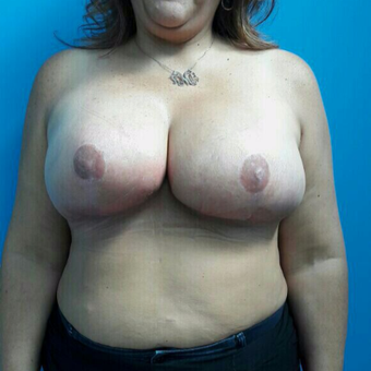 35-44 year old woman treated with Breast Reduction after 3350080