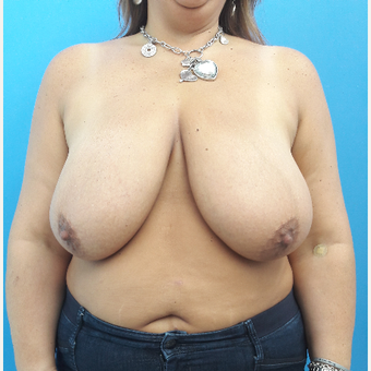 35-44 year old woman treated with Breast Reduction before 3350080