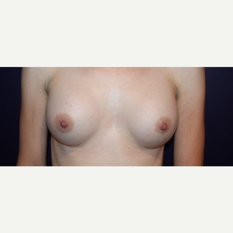 25-34 year old woman treated with Breast Augmentation after 2830271