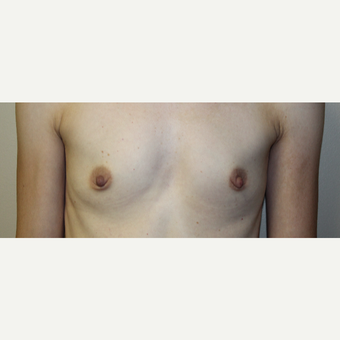 25-34 year old woman treated with Breast Augmentation before 2830271