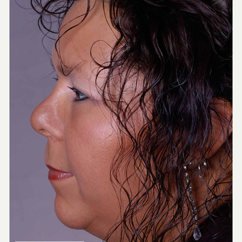 25-34 year old woman treated with Rhinoplasty after 3692035