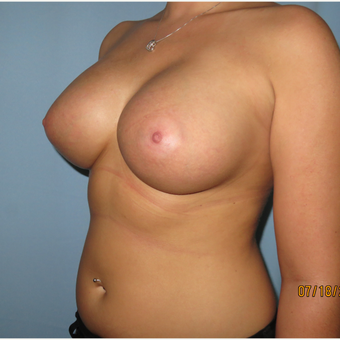 25-34 year old woman treated with Breast Augmentation after 3099585
