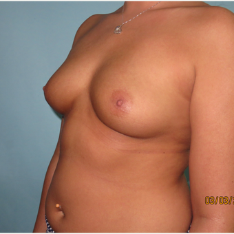 25-34 year old woman treated with Breast Augmentation before 3099585
