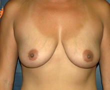 Breast Implants before 3544987