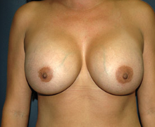 Breast Implants after 3544987