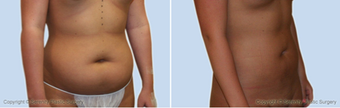Liposuction  before 214364