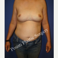 45-54 year old woman treated with Mentor Breast Implants before 3001511
