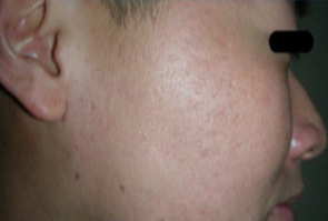 25-34 year old man treated with Fraxel Laser after 2976183