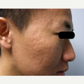 25-34 year old man treated with Fraxel Laser before 2976183