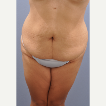18-24 year old woman treated with Tummy Tuck before 3590435