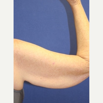 61 year old woman with an Arm Lift before 3065437