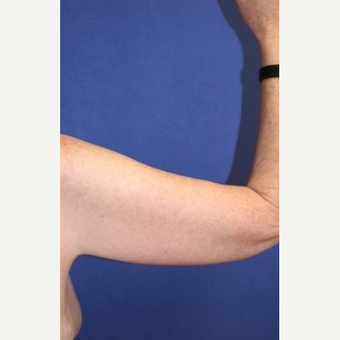 61 year old woman with an Arm Lift after 3065437