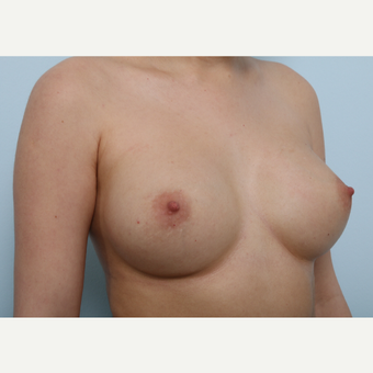 Breast Augmentation after 3340093
