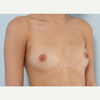Breast Augmentation before 3340093