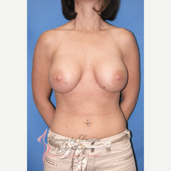 25-34 year old woman treated with Breast Implants after 3095455