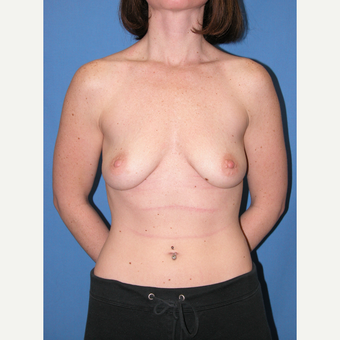 25-34 year old woman treated with Breast Implants before 3095455