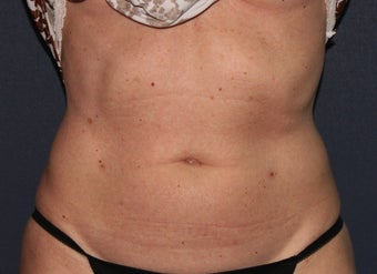 55 yo Female ThermiTight for Abdominal Skin Laxity after 1459267