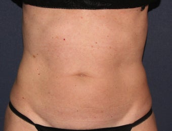 55 yo Female ThermiTight for Abdominal Skin Laxity before 1459267