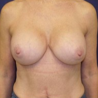 Breast Augmentation after 1568969