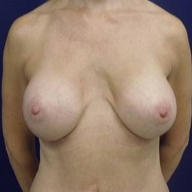 Breast Augmentation before 1568969