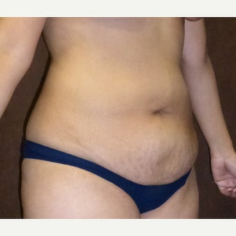 35-44 year old female treated with Tummy Tuck 1915271