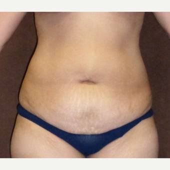 35-44 year old female treated with Tummy Tuck before 1915271