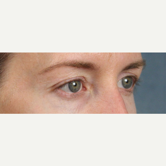 Eyelid Surgery before 3123710