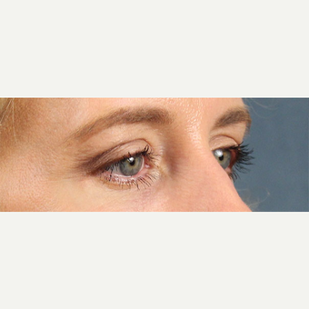 Eyelid Surgery after 3123710