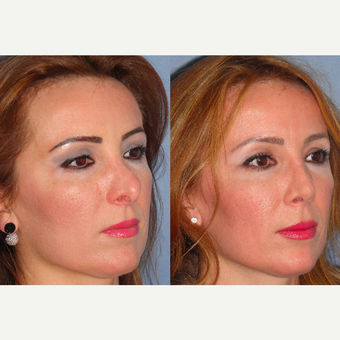 45-54 year old woman treated with Revision Rhinoplasty after 3521417