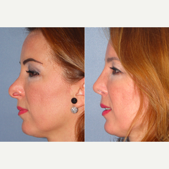 45-54 year old woman treated with Revision Rhinoplasty before 3521417