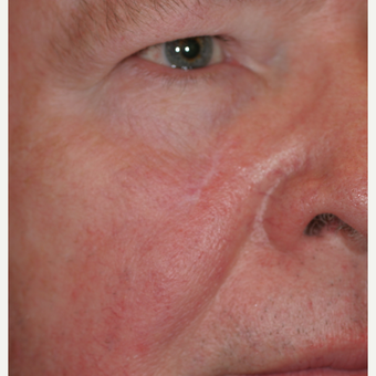55-64 year old man treated with Mohs Surgery after 3292735