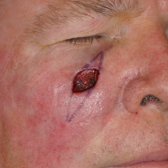 55-64 year old man treated with Mohs Surgery before 3292735
