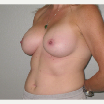 35-44 year old woman treated with Breast Augmentation after 3460652