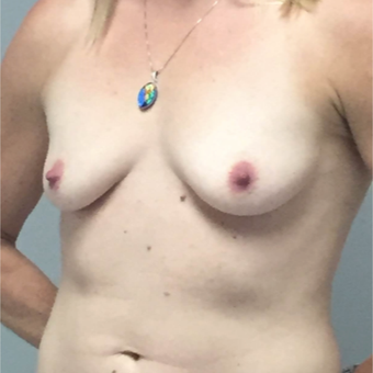 35-44 year old woman treated with Breast Augmentation before 3460652