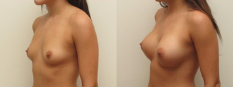 Breast Augmentation Silicone Implants  after 1403863