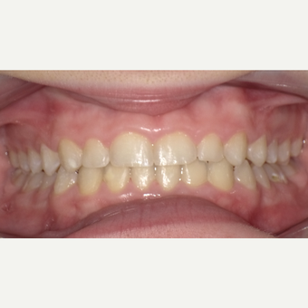 17 or under year old woman treated with Invisalign after 3663379