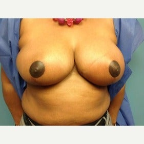 35-44 year old woman treated with Breast Reduction after 2486911