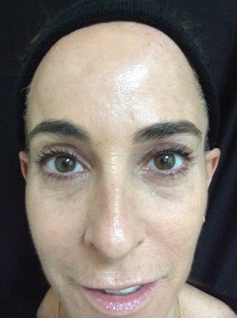 Female Treated with Botox in Forehead and Crows Feet after 1337209