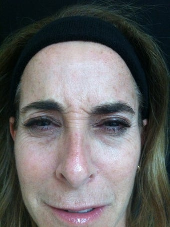 Female Treated with Botox in Forehead and Crows Feet before 1337209