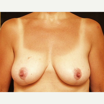 45-54 year old woman treated with Breast Lift after 3576109