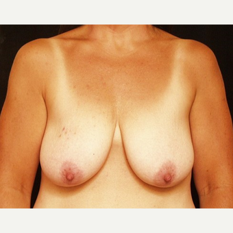 45-54 year old woman treated with Breast Lift before 3576109