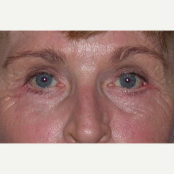 Eyelid Surgery after 1604605