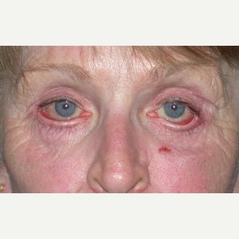 Eyelid Surgery before 1604605